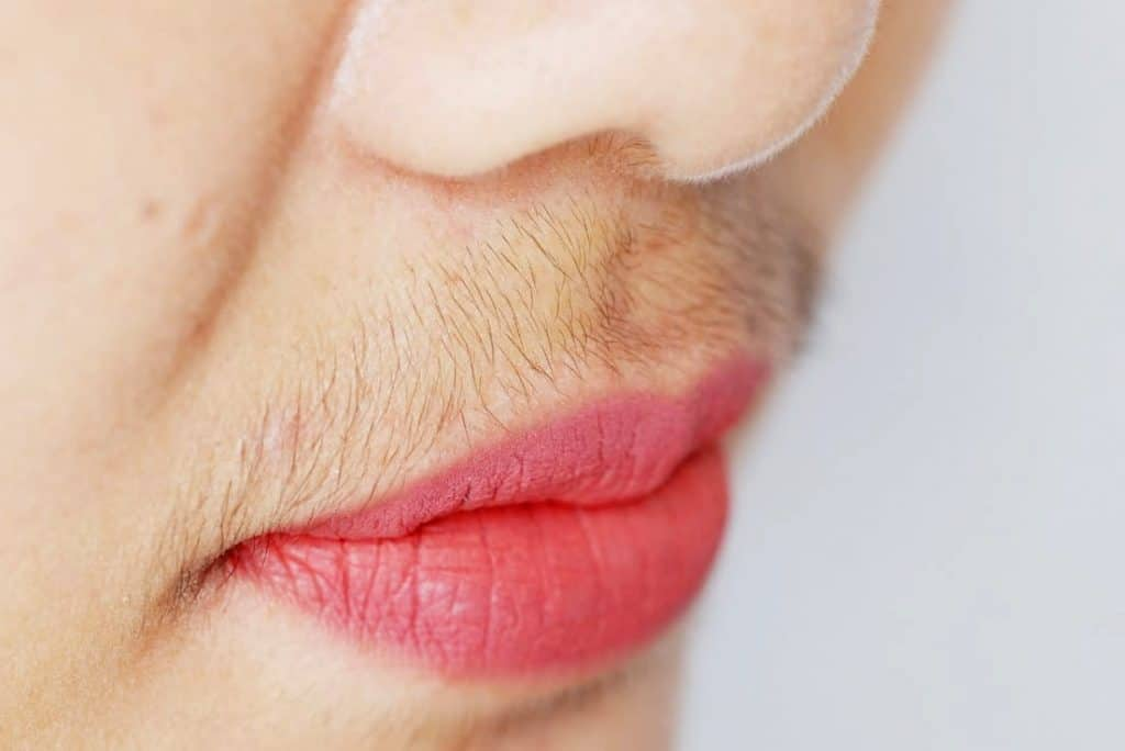 Hirsutism or excessive facial hair management Hair Free Hair Remover