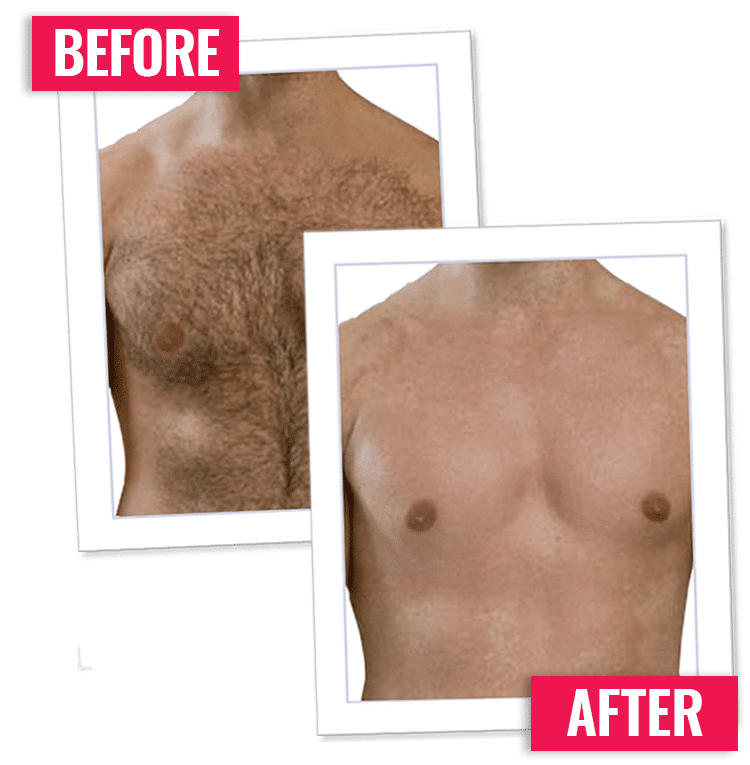 Male Body Hair Remover Permanent Hair Removal