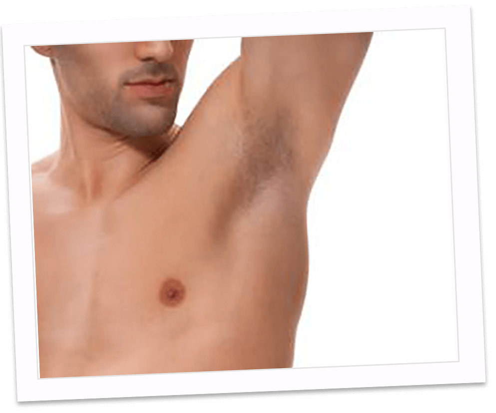 Hairfree for men - Hair Free Permanent Hair Removal
