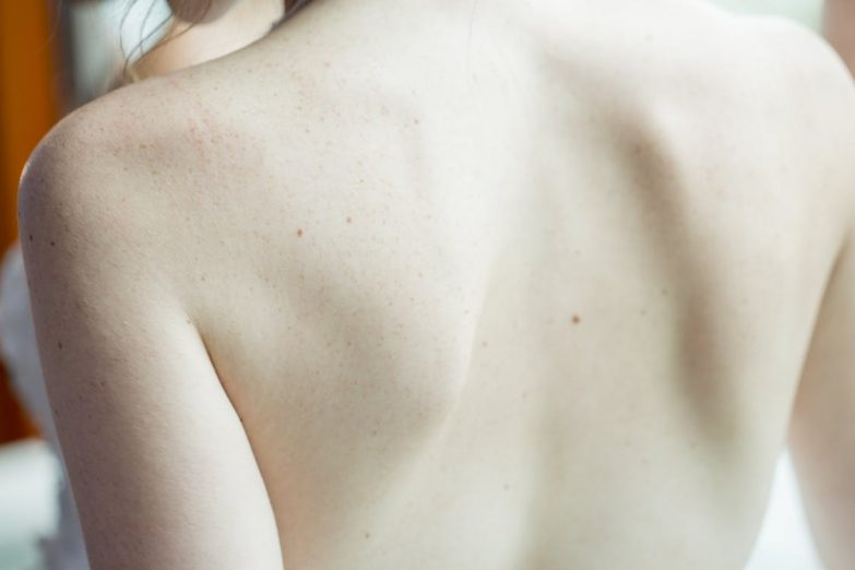 Comparison Of Hair Removal Creams With Other Methods